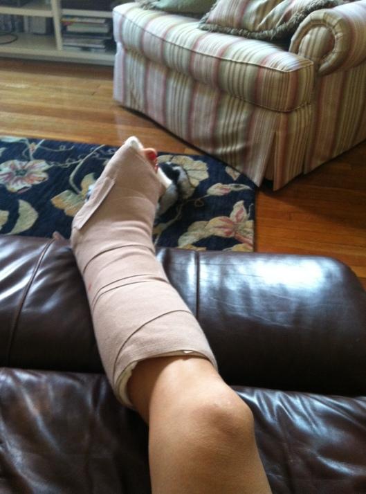 broken foot in cast